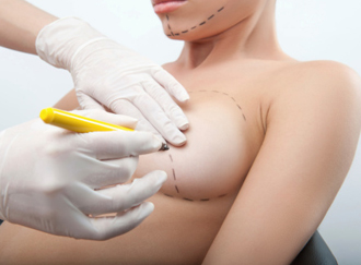 Breast Augmentation Surgery Orange County Breast Implants In