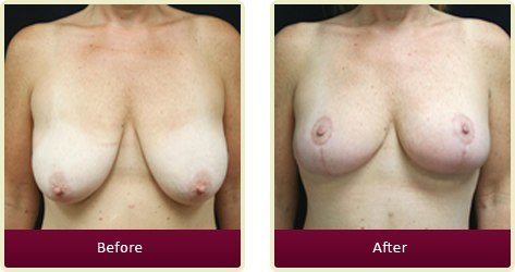 Breast Lift Surgery Orange County - Breast Lift  Before and After
