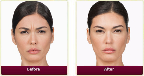 Botox Before and After Case 2