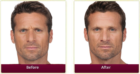 Botox Before and After Case 3