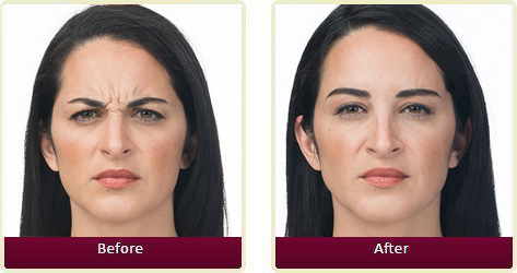 Botox Before and After Case 4