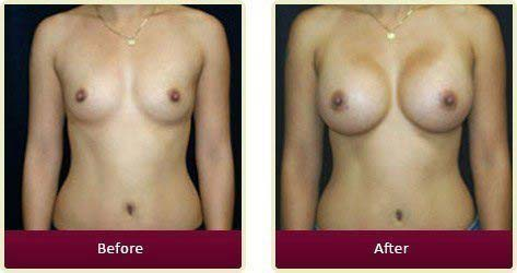 Plastic Surgeon Orange County - Breast Before After