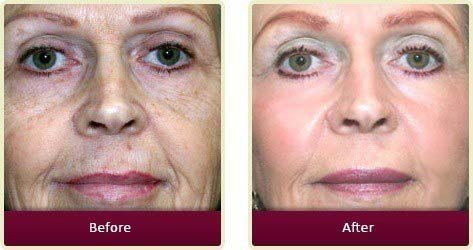 Plastic Surgeon Orange County - Face Before After