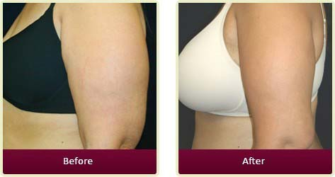 Plastic Surgeon Orange County - Body Contouring Before After