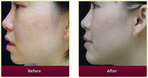 Plastic Surgeon Orange County - Asian Face Before After