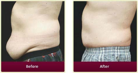 Plastic Surgeon Orange County - Cosmetic Surgery for Men Before After