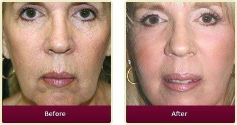 Plastic Surgeon Orange County - Before After Medspa