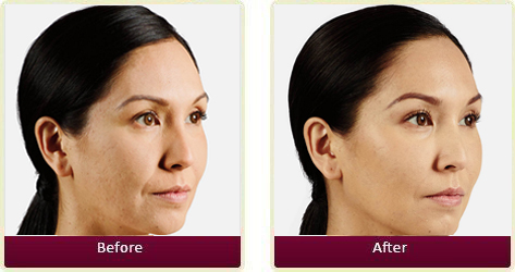 Juvederm Before and After 02