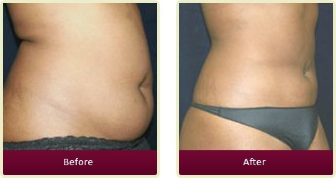 Liposuction Surgery Orange County - Liposuction Before and After