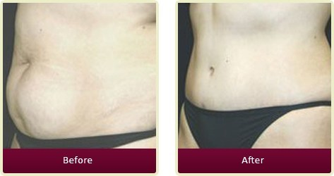 Tummy Tuck Orange County - Tummy Tuck Before and After